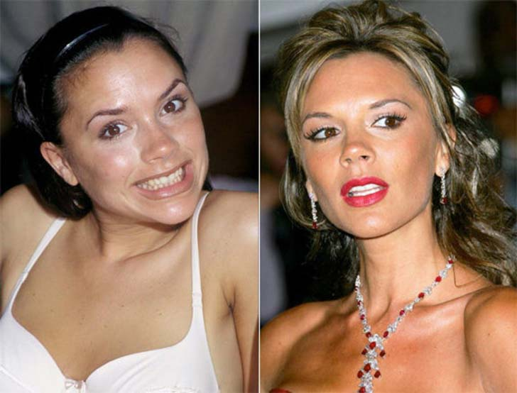 10-before-and-after-dental-care-photos-prove-good-teeth-can-change-your-face_10