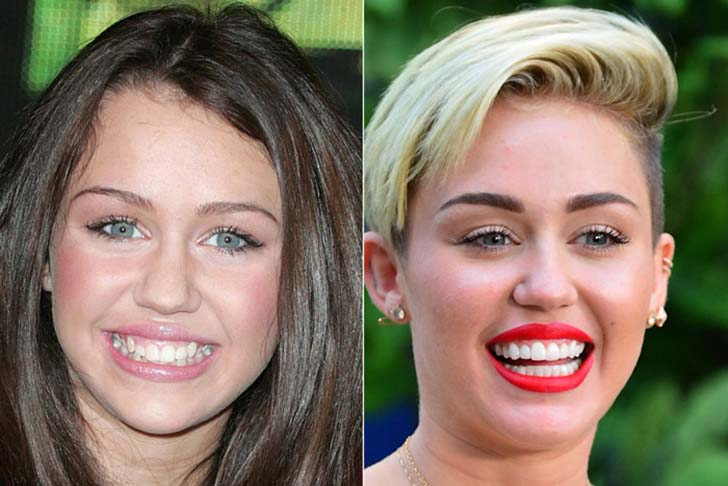 10-before-and-after-dental-care-photos-prove-good-teeth-can-change-your-face_7