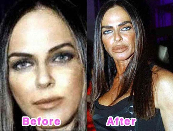 12-eye-catching-celebs-destroyed-by-plastic-surgery_10
