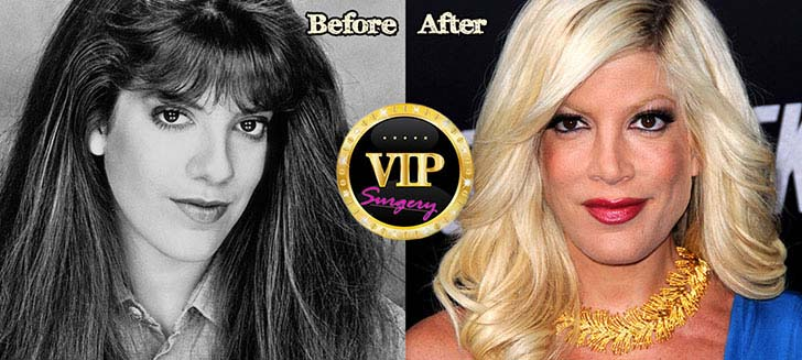 12-eye-catching-celebs-destroyed-by-plastic-surgery_12