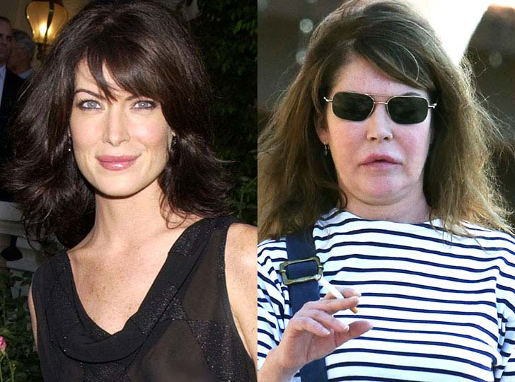 12-eye-catching-celebs-destroyed-by-plastic-surgery_7