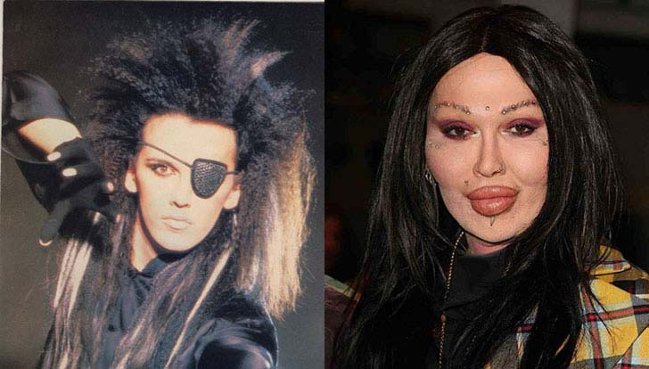 12-eye-catching-celebs-destroyed-by-plastic-surgery_9