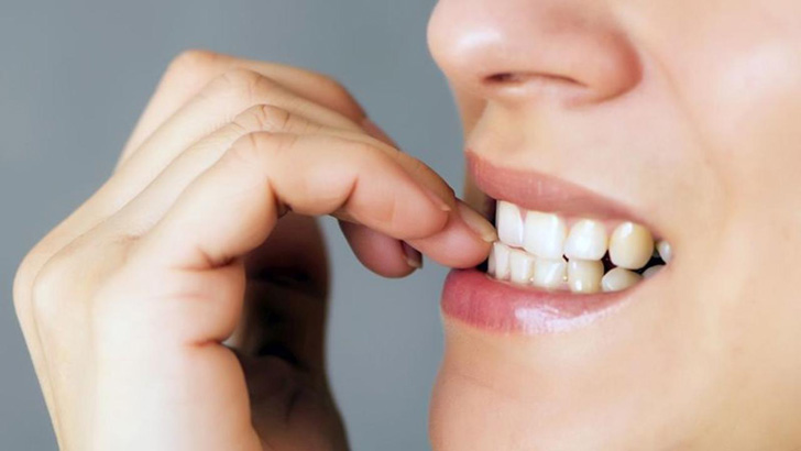 15-daily-habits-that-wreck-your-teeth_1