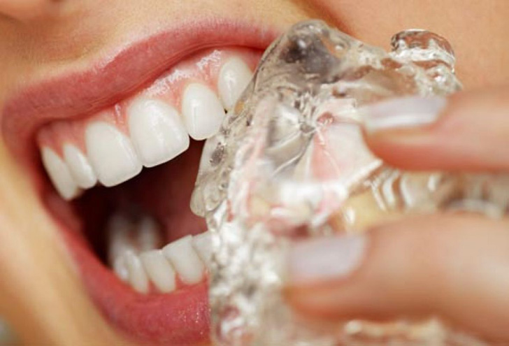 15-daily-habits-that-wreck-your-teeth_2