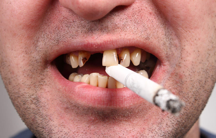 15-daily-habits-that-wreck-your-teeth_7